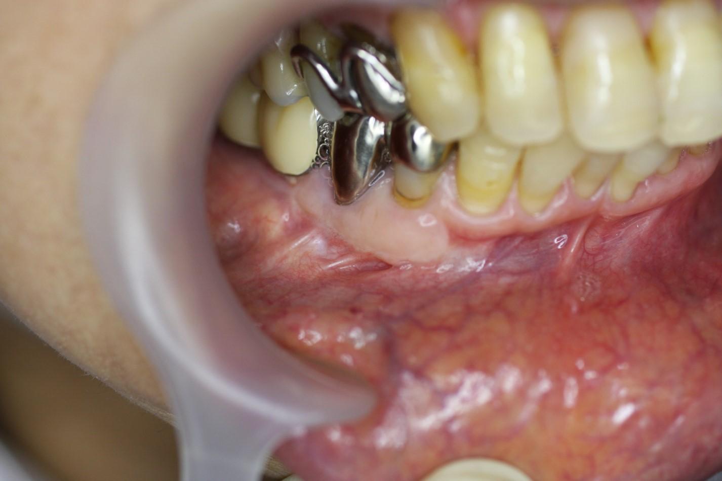 血 歯茎 出る から が
